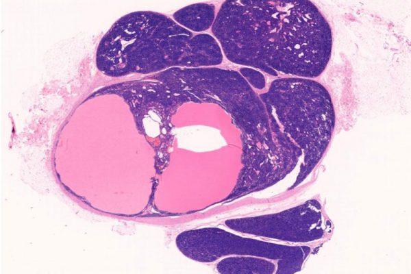 Eccrine-Spiradenoma-Skin-de