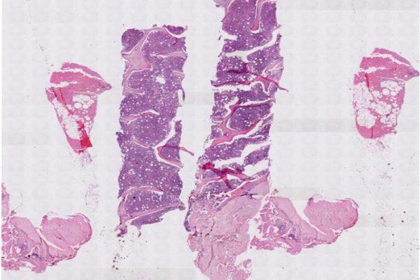 Leishmaniasis-BMBx-hemat